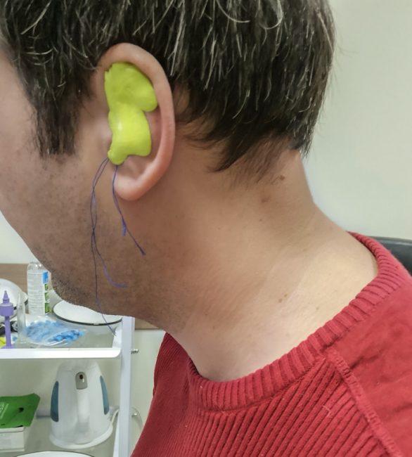 Слепок ушного канала
