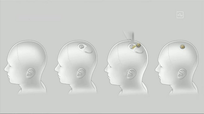 neuralink ilon mask