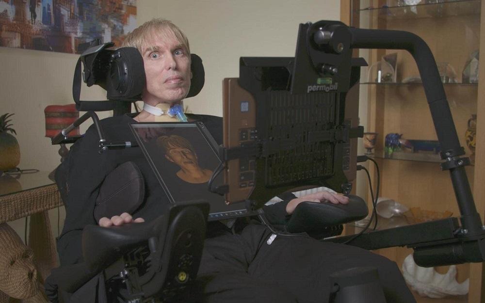 Cyborgizacja jako walka z niepełnosprawnością