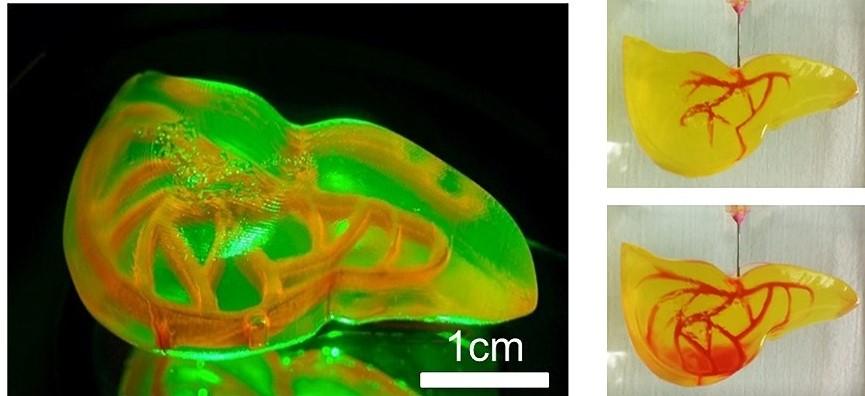 3D-printed a human liver